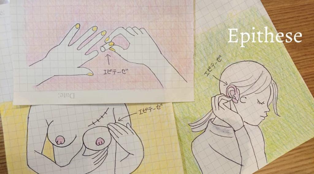 エピテーゼをイメージしたイラスト画像